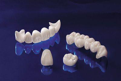 Răng sứ không kim loại là gì? 1