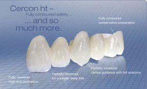 Các loại răng sứ phổ biến hiện nay 2
