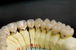 Răng sứ đỉnh cao của phục hình răng miệng 1