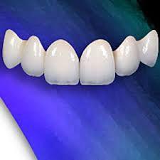 Răng sứ và các loại răng sứ hiện nay