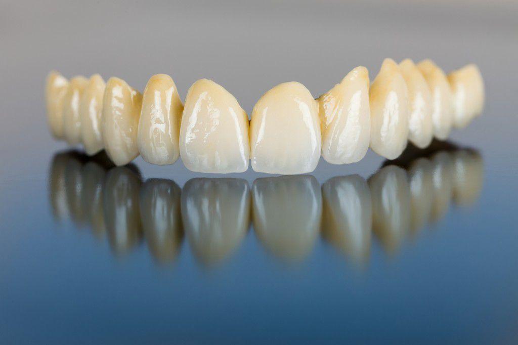 Răng sứ đỉnh cao của phục hình răng miệng 2