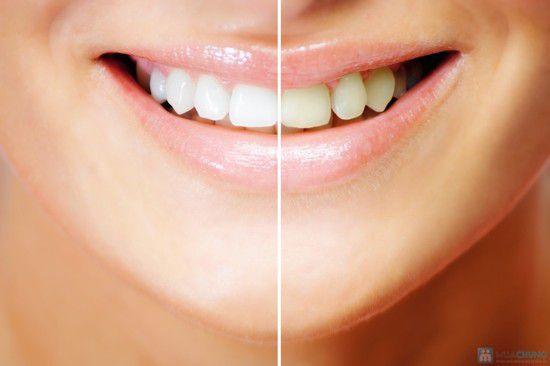 Phương pháp tẩy trắng răng BleachBright công nghệ tẩy trắng răng mới hiệu quả