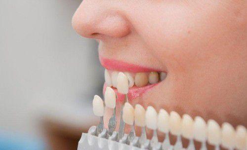 BleachBright công nghệ tẩy trắng răng mới hiệu quả