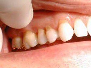 Bọc răng bị mòn