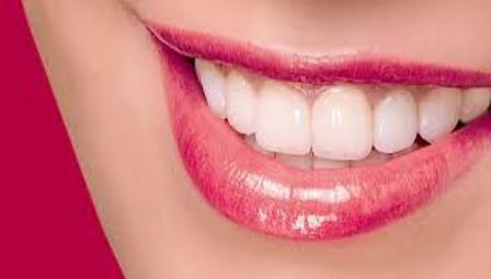 Bọc răng bị mòn 2