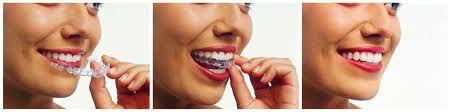Chi phí niềng răng không mắc cài Clear Aligner