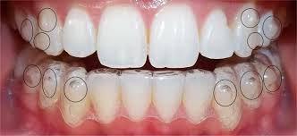Chi phí niềng răng không mắc cài Clear Aligner 3