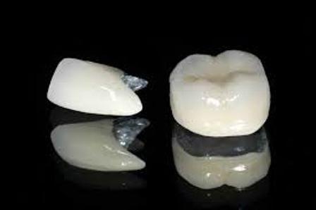 Có nên bọc răng sứ Titan? 1