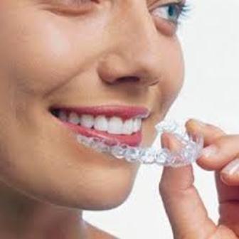 Niềng răng cho người trưởng thành 2