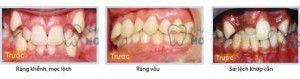 Niềng răng hô hàm trên bằng công nghệ gì
