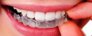Niềng răng không mắc cài tốt ở đâu