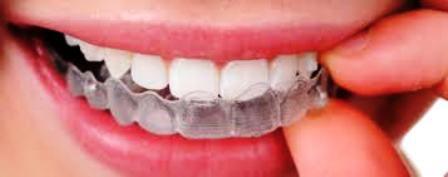 Niềng răng không mắc cài tốt ở đâu? 1