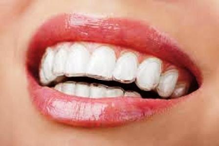Niềng răng không mắc cài tốt ở đâu? 2
