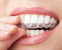 Niềng răng móm bao lâu