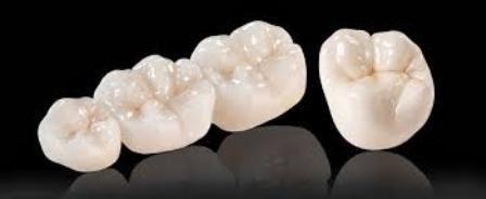 Răng sứ Cercon giá bao nhiêu? 2