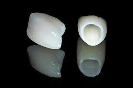 Răng sứ Cercon giá bao nhiêu? 1