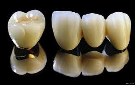 Răng sứ Titan có ưu điểm gì