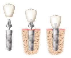 Trồng răng giả implant có lợi ích gì