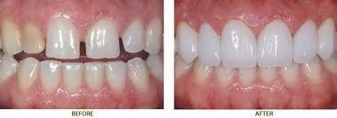 Ưu điểm của bọc răng sứ so với trám răng 1