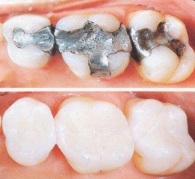 Bọc răng sứ một giải pháp mới cho răng sâu 3