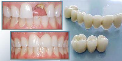 Bọc răng sứ có đau không? 2