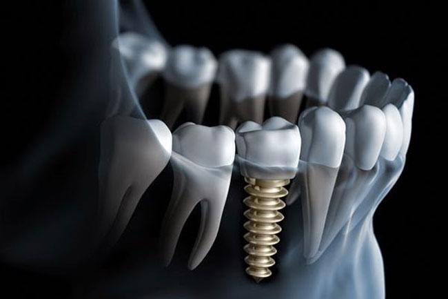 Bọc răng sứ với phương pháp phục hình cố định