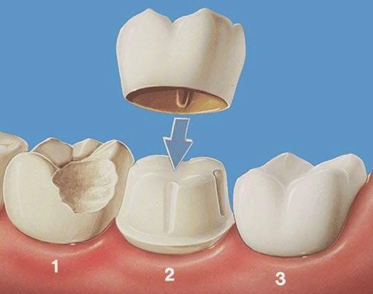 Bọc răng sứ với phương pháp phục hình cố định 1