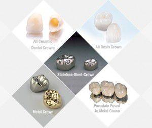 phân loại răng sứ