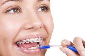 Chăm sóc răng miệng sau khi niềng