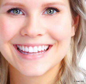 điều kiện bọc răng sứ