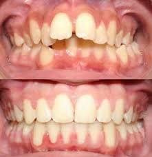 Khắc phục hàm răng hô nhờ bọc răng sứ