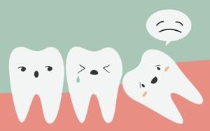 Làm gì khi bị đau do mọc răng khôn