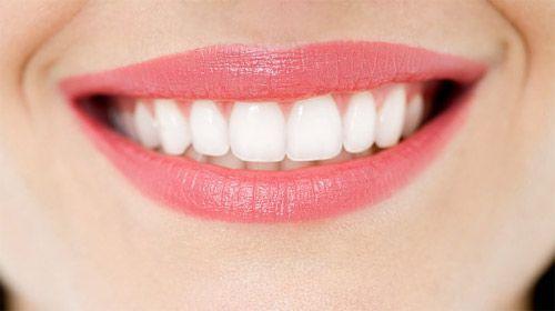 Laser Whitening cho hàm răng trắng không tỳ vết 1