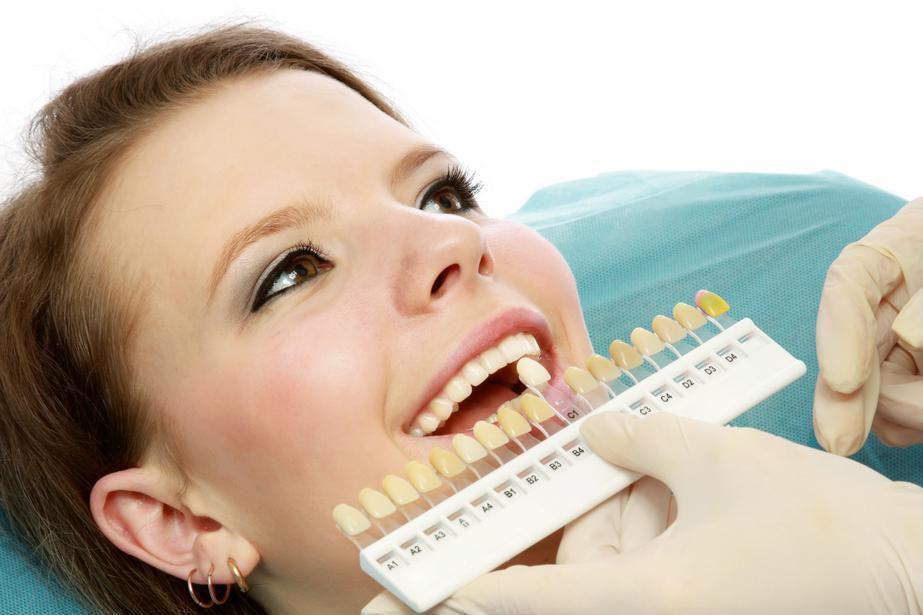 Laser Whitening cho hàm răng trắng không tỳ vết 3