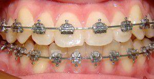 Những điều cần biết về niềng răng cho người trưởng thành