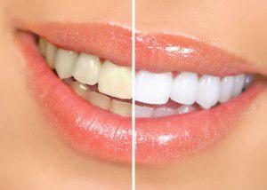 Những vấn đề cần lưu ý khi tẩy trắng răng