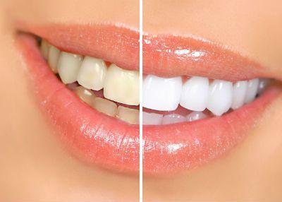 Những vấn đề cần lưu ý khi tẩy trắng răng 1