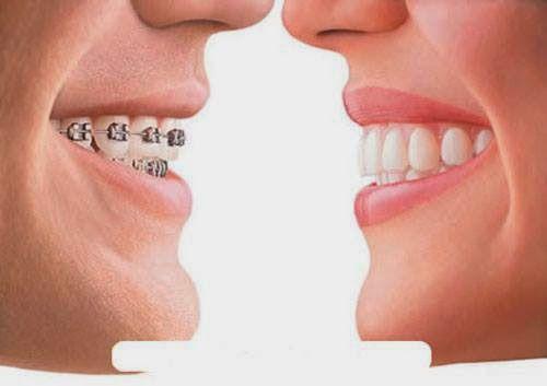 Niềng răng hết bao nhiêu tiền và thời gian điều trị bao lâu? 1