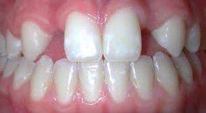 Phục hình răng thưa thổi bay nỗi lo răng khiếm khuyết