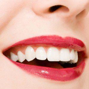 Răng sứ cao cấp có ưu nhược điểm gì? 1