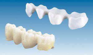 Tại sao nên chọn răng sứ Cercon? 1