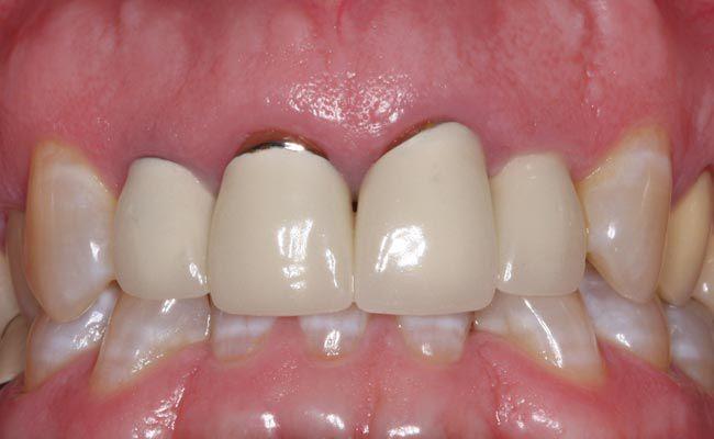 Răng sứ kim loại thường 1
