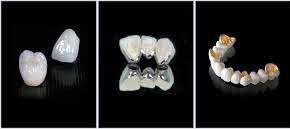 Răng sứ titan có bị đen