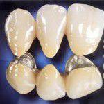 Tìm hiểu sâu hơn về răng sứ titan