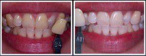 Các tác động từ yếu tố bên ngoài như trà, cà phê, thuốc lá, thức ăn có màu đang ngày qua ngày phá hủy màu răng bạn mà bạn lại không có đủ thời gian hay sự kiên nhẫn để thực hiện các phương pháp tẩy trắng răng tại nhà. Hãy yên tâm! Nha khoa hiện đại đã mang đến một phương pháp tẩy trắng răng đơn giản hiệu quả với Brite Smile.