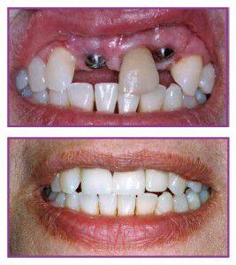 Trồng răng sứ bằng cấy ghép Implant có nguy hiểm không