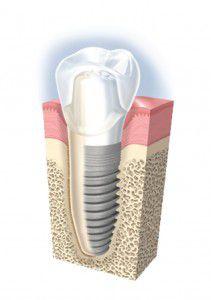 Vì sao trồng răng sứ Implant lại có giá thành cao