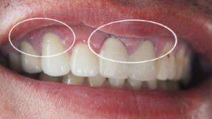 Răng sứ Margin không còn lo đen viền nướu răng sứ