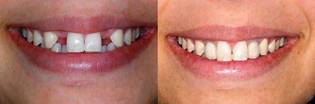Bọc răng sứ cho răng cửa 2