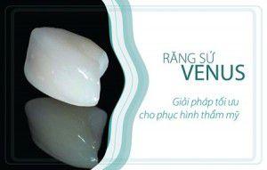 Bọc răng sứ venus giá bao nhiêu?